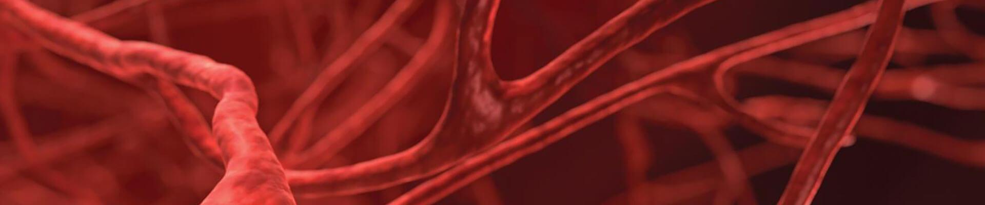 cirugia_vascular_endovascular_ivei